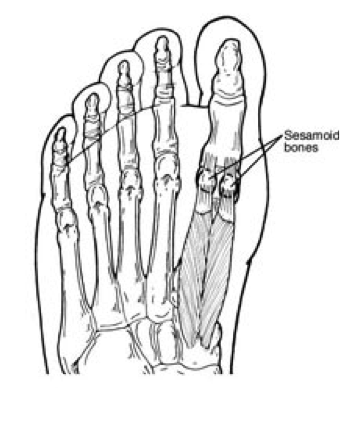 sesamoid injuries  u2013 foot and ankle specialists of middle
