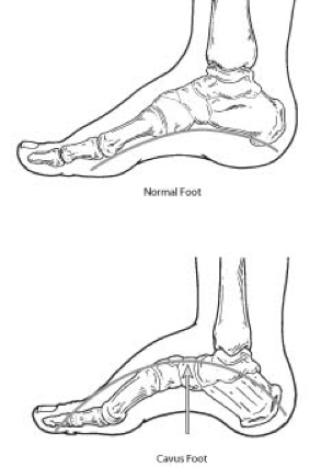 Cavus Foot High Arched Foot