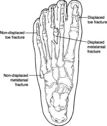 toe and metatarsal fractures  broken toes   u2013 foot and